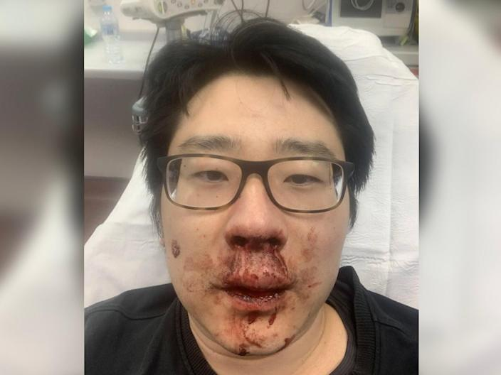 University lecturer Peng Wang, 37, was viciously attacked by four men who shouted racial abuse at him while he was jogging near his home in Southampton (Peng Wang)