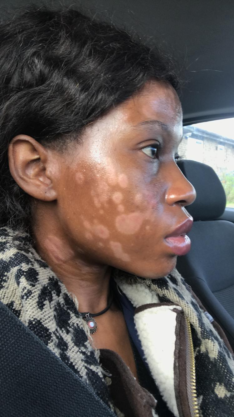 The patchy skin condition has caused strangers to ask if she is a burns victim or contagious.
