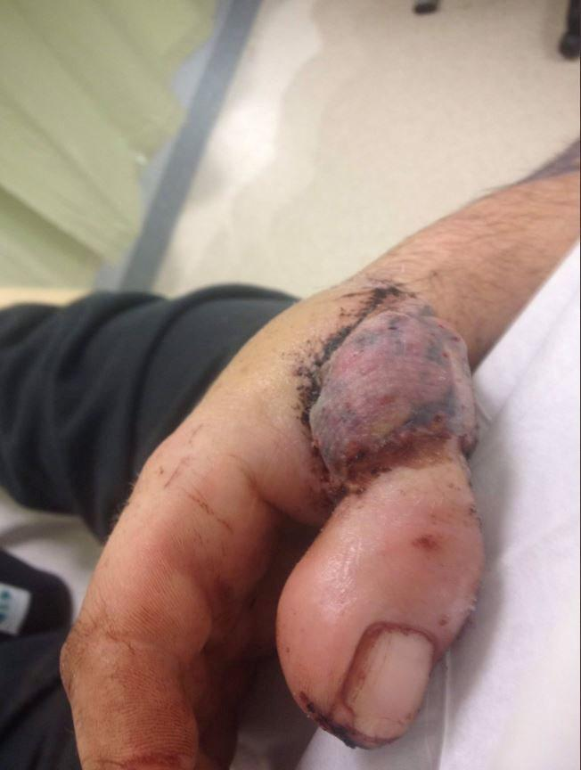 David was trimming the heel of a shoe last January when his hand got snagged in the machine and his right thumb was cut off (Picture: SWNS)