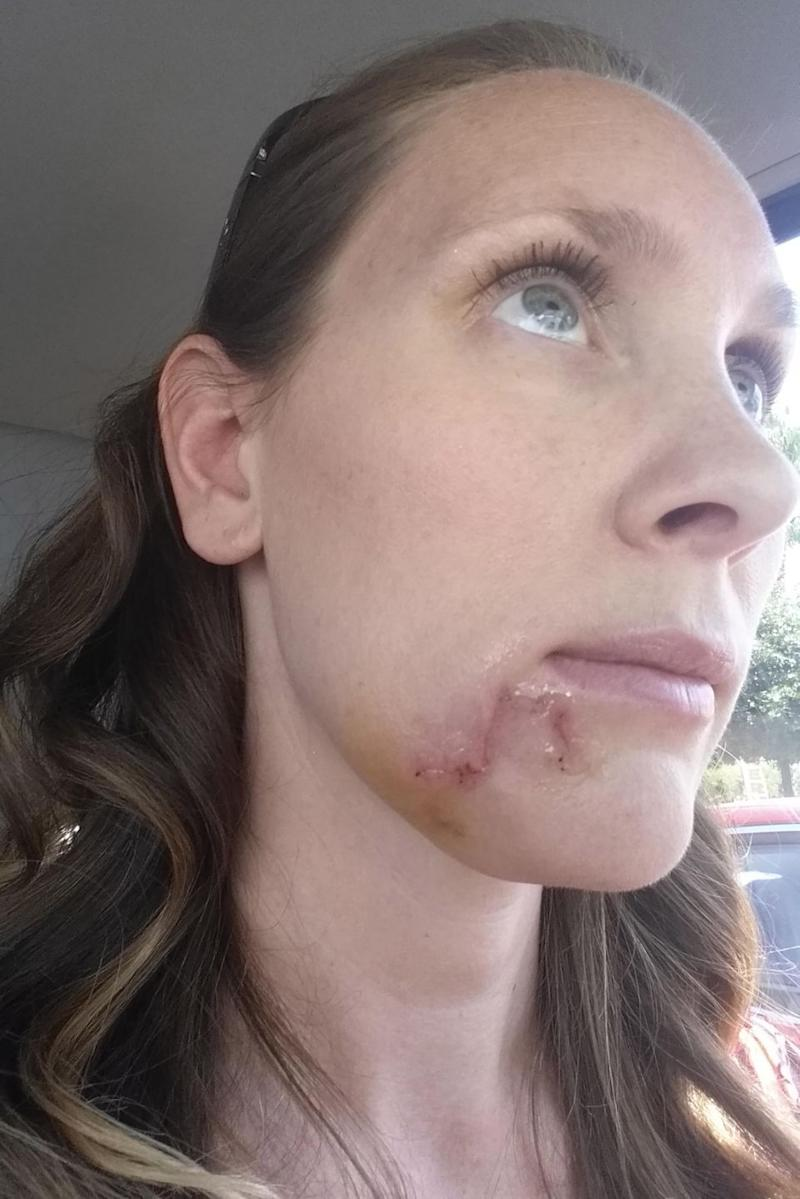 Kari was left with 35 stitches in her chin after the carcinoma was removed. Source: Caters