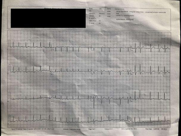 PHOTO: Ed Dentel's EKG after getting tested following an alert from his Apple watch. (Courtesy Ed Dentel)