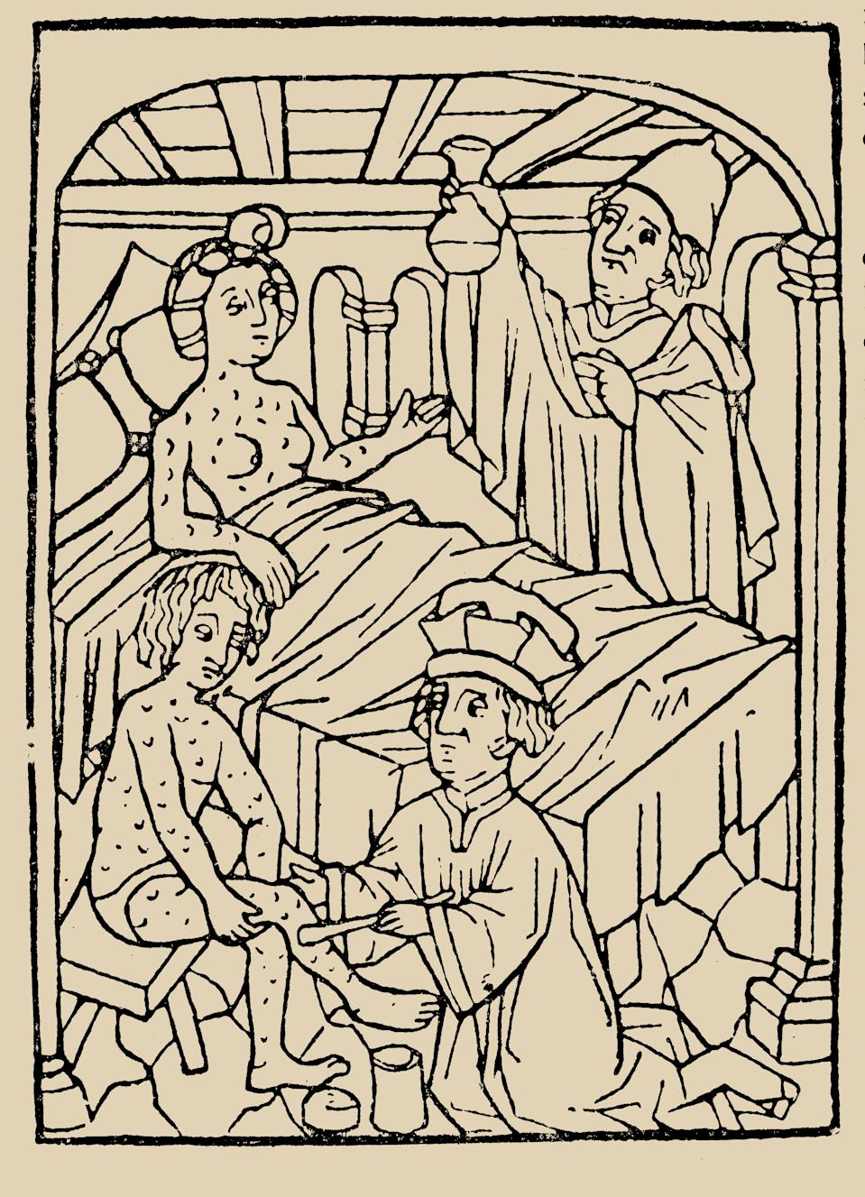 Syphilis treatment Treatment with ointments (mercury). From. (Photo by Fine Art Images/Heritage Images/Getty Images)