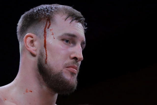 FILE - In this Saturday, April 13, 2019 file photo, blood runs down the side of Otto Wallin's head during the first round of his heavyweight boxing bout against Nick Kisner on in Atlantic City, N.J. Swedish heavyweight Otto Wallin will take his first step into big-time boxing when he fights Tyson Fury in Las Vegas on Saturday Sept. 14, 2019. A win for Wallin would be a big shock because the unbeaten Fury is the lineal champion and perhaps is the best heavyweight out there. (AP Photo/Julio Cortez, File)