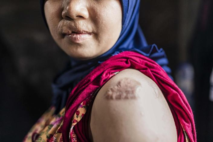 A woman bears marks of abuse on her lips and upper arm
