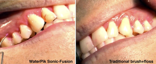 When used as directed, regular floss does a better job. Sorry about the gross closeup.