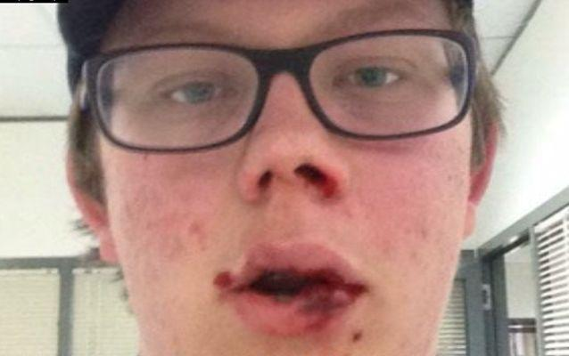 Josh Lawrie is recovering in hospital after being bashed by a fellow school student. Source: 7 News.