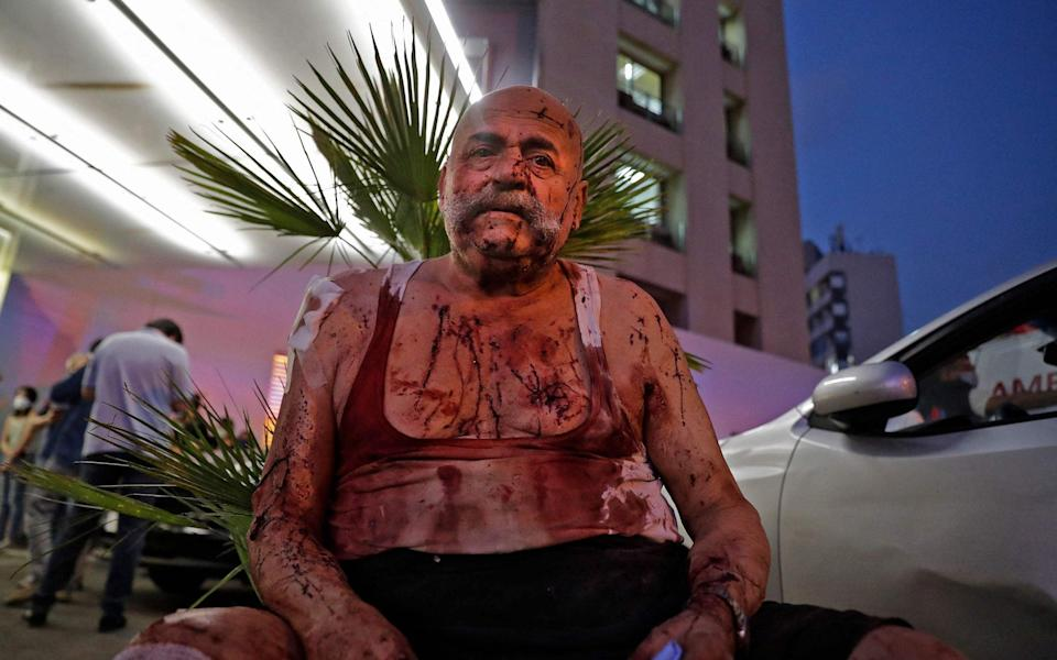 A wounded man receives help outside a hospital following the explosion - Ibrahim Amro/Getty
