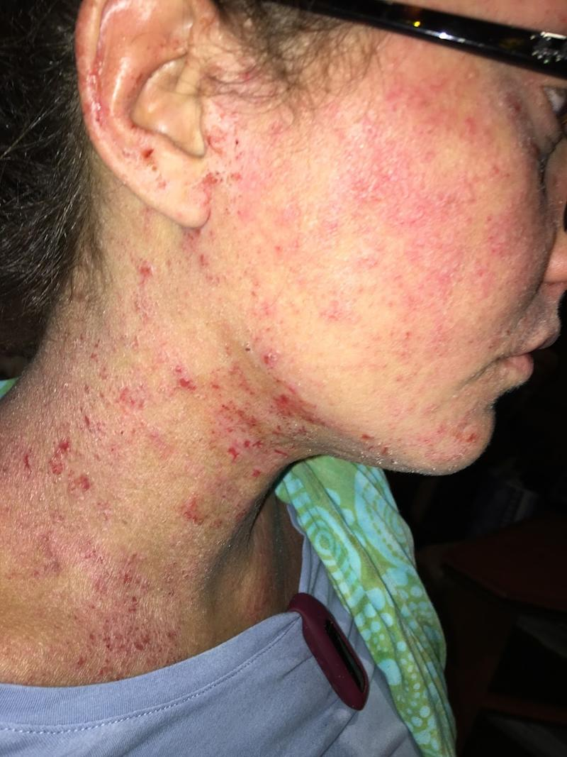 A look at Sandberg's skin. (Photo: Ditch the Itch)