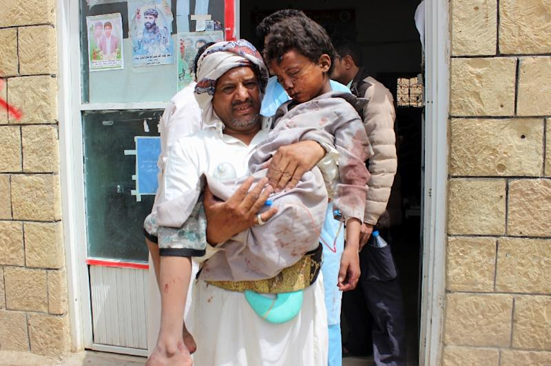 A man transports a child to a hospital after he was wounded in a reported air strike in Saada on August 9, 2018