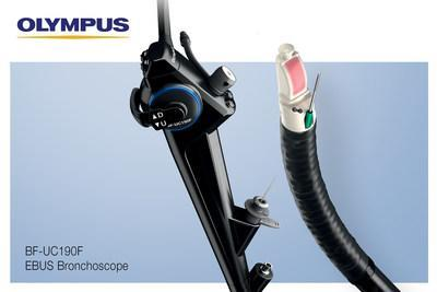 The BF-UC190F EBUS Bronchoscope is the newest addition to the robust Olympus EBUS portfolio of devices for the minimally invasive diagnosis and staging of lung cancer.