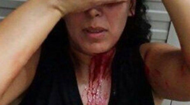 Iranian refugee Marjan was attacked last year in front of her home by two men who hit her with a metal bar. Source: Private