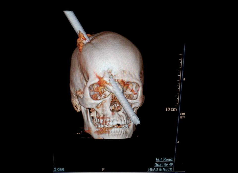 This tomography scan released Thursday, Aug. 16, 2012 by the Miguel Couto hospital, show the skull of 24-year-old construction worker Eduardo Leite pierced by a metal bar in Rio de Janeiro, Brazil. Doctors say Leite survived after a 6-foot metal bar fell from above him and pierced his head. Luiz Essinger of Rio de Janeiro's Miguel Couto Hospital Friday told the Globo TV network that doctor's successfully withdrew the iron bar during a five-hour-long surgery.