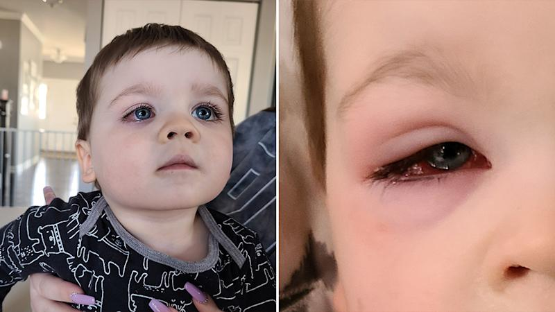 Two-year-old Baylor almost lost his eyesight after playing with a bath toy. Source: Facebook/Eden Strong - No Shame