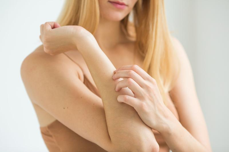 Dupixent, an Injectable Treatment to Target Eczema, Has Just Been Approved by the FDA