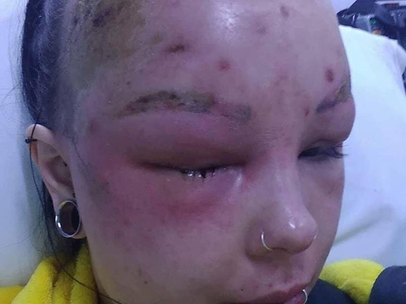 On Sunday her face became so swollen she was unable to see out of one eye. Source: GiveALittle