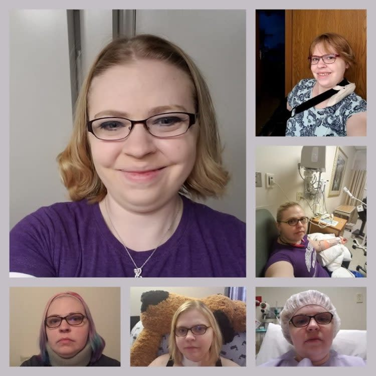 woman with short blonde hair different photos of chronic illness