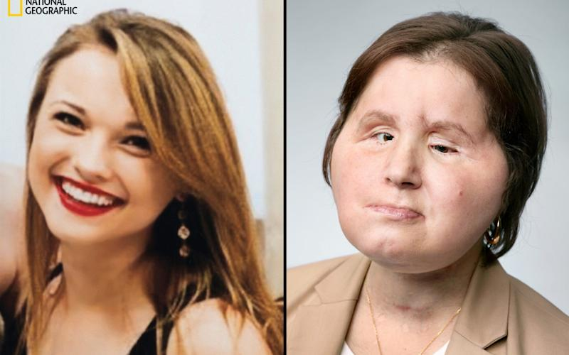 Katie Stubblefield shot herself in the face in 2014. she had a face transplant in 2017