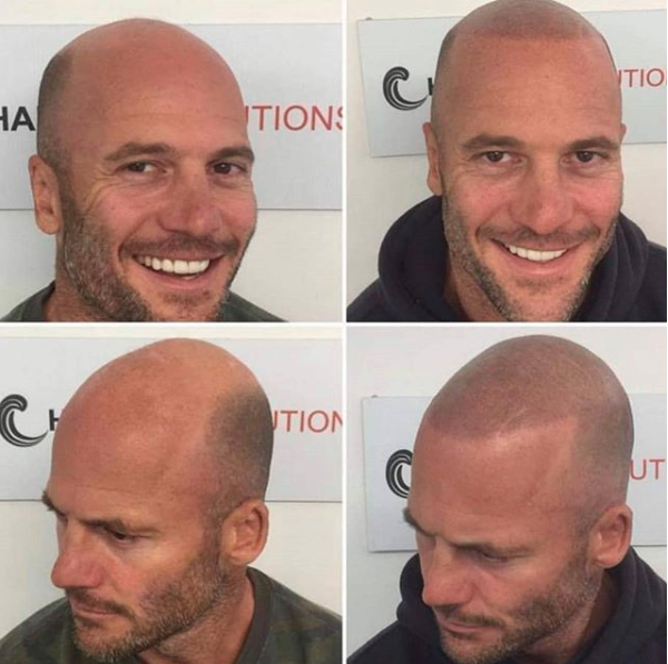 Married At First Sight's Mike has unveiled his dramatic hair transformation. Photo: Instagram/hairlinesolutions