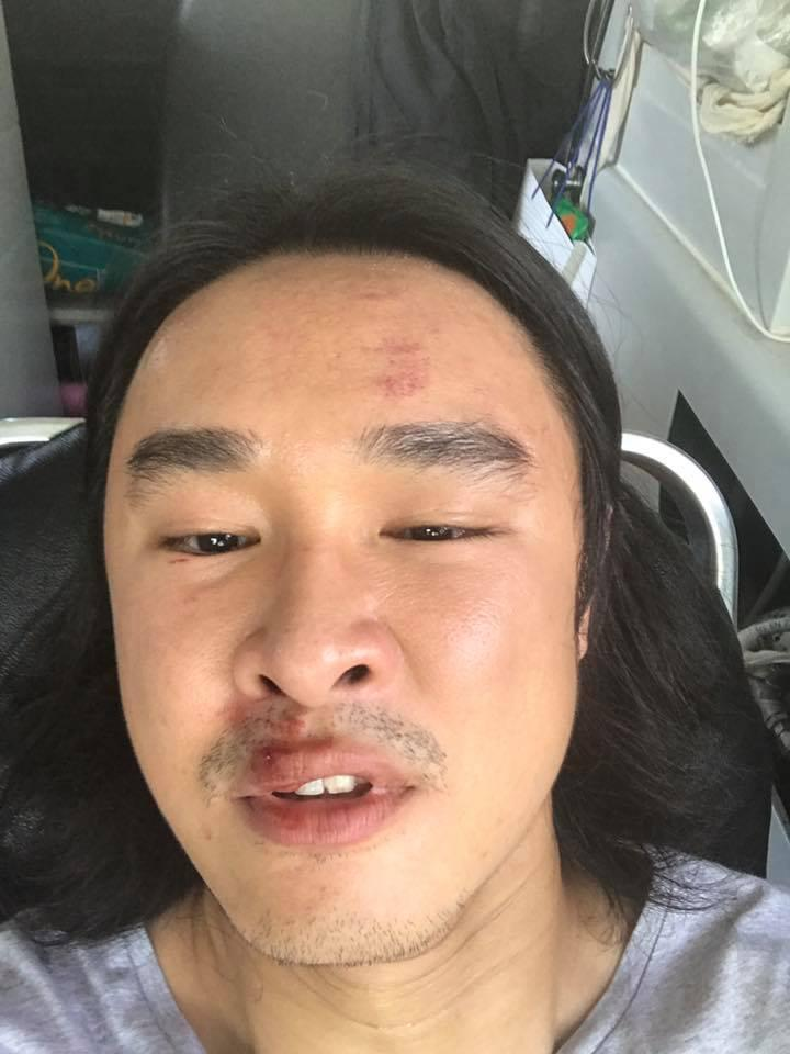 Actor Julian Hee was allegedly hurt in a road rage incident, after a man