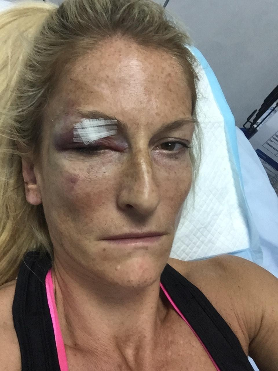 Alison Stockton says she 'was incredibly lucky to escape with so few injuries' after she blacked out while driving (supplied, Alison Stockton)