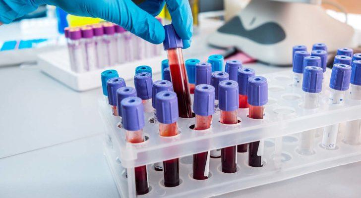penny stocks to buy Global Cord Blood Corp. (CO)