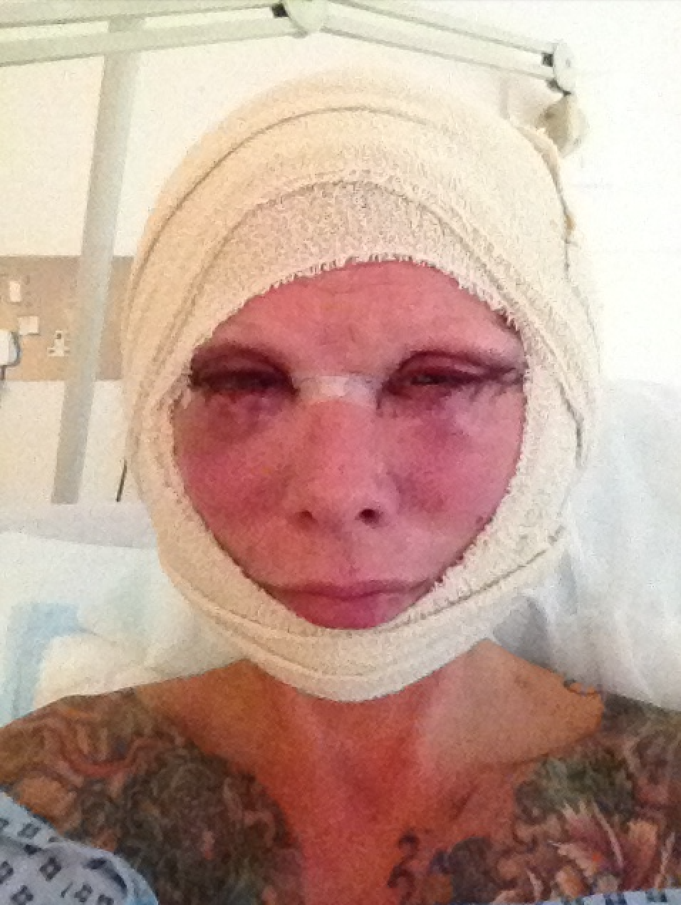 Jess Eaton after facelift surgery (supplied, Jess Eaton)