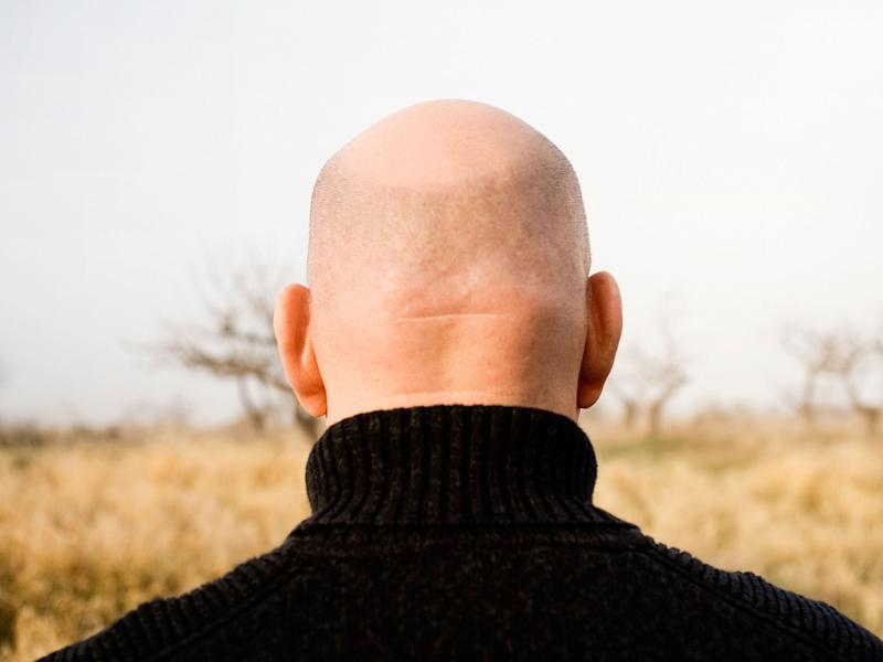 Baldness: Looking your death full in the face will help you to find liberty in life: Alamy