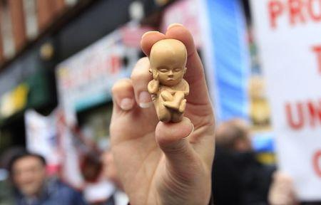 A pro-life campaigner holds up a model of a 12-week-old embryo during a  protest outside the Marie Stopes clinic in Belfast