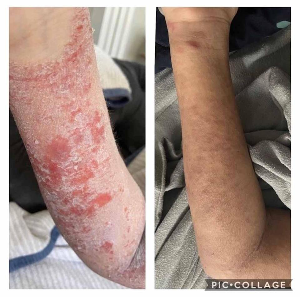 Scarlet's arm was bright red and painful. PA REAL LIFE COLLECT