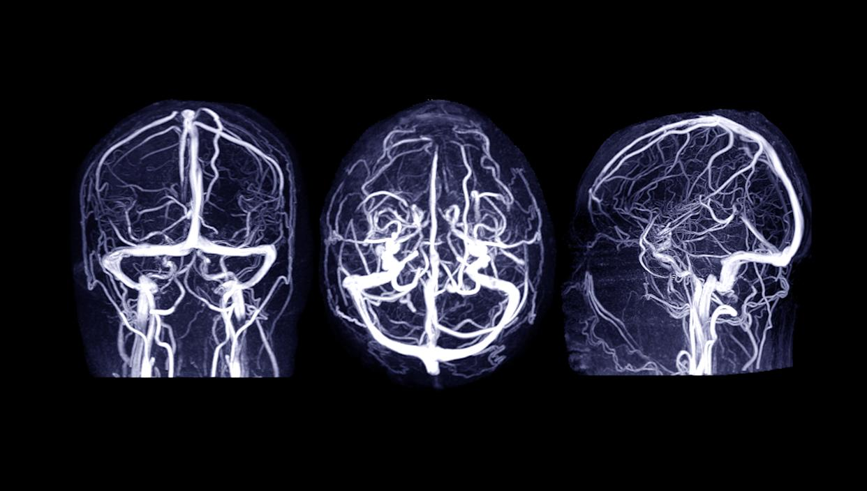 MRV Brain or magnetic resonance venography of The Brain for abnormalities in venous drainage of the brain