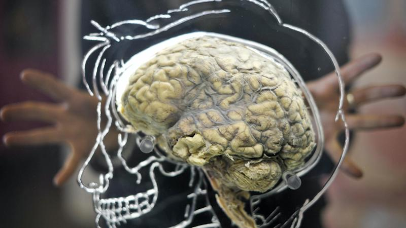 Increase in rare brain inflammation linked to Covid-19, scientists say