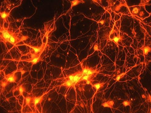 """<span class=""""caption"""">Connections between brain cells.</span> <span class=""""attribution""""><a class=""""link rapid-noclick-resp"""" href=""""https://www.flickr.com/photos/132318516@N08/22798807131"""" rel=""""nofollow noopener"""" target=""""_blank"""" data-ylk=""""slk:NIH Image Gallery/Flickr"""">NIH Image Gallery/Flickr</a>, <a class=""""link rapid-noclick-resp"""" href=""""http://creativecommons.org/licenses/by-nc/4.0/"""" rel=""""nofollow noopener"""" target=""""_blank"""" data-ylk=""""slk:CC BY-NC"""">CC BY-NC</a></span>"""