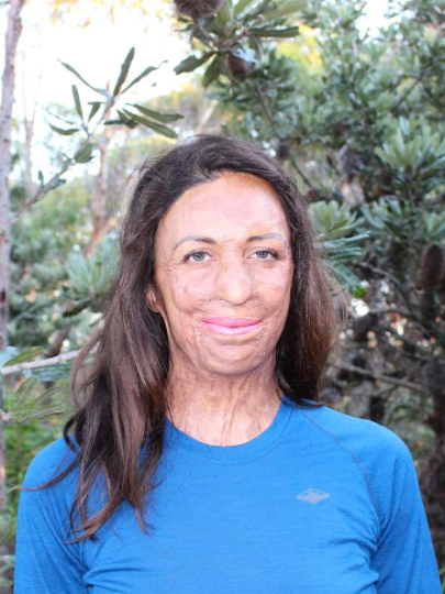 Turia made headlines in 2011 when she survived horrific burns during a race. Source: Instagram/turiapitt