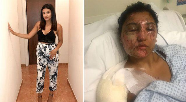 Ms Khan before and after the reported attack. Source: GoFundMe