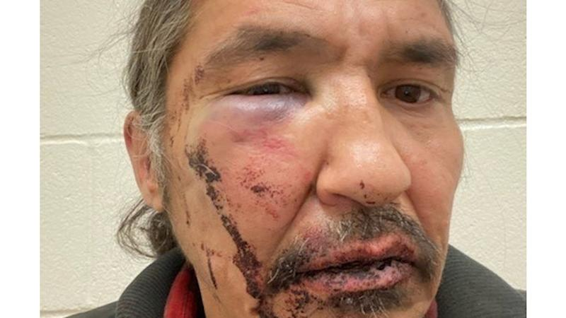 No case against Canada indigenous chief battered by police