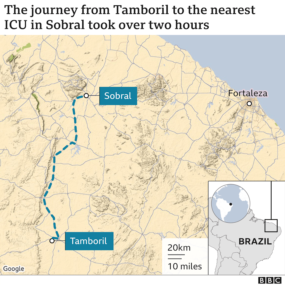 The journey from Tamboril to the nearest ICU in Sobral took over two hours