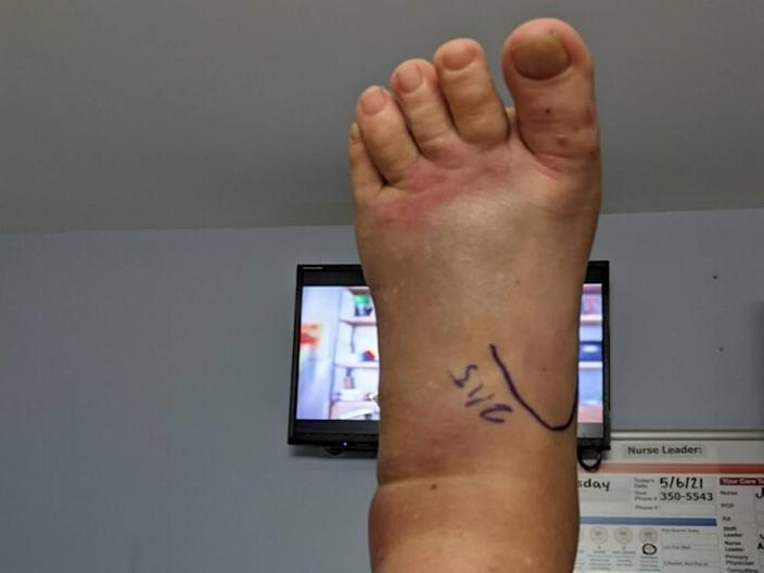 Susan Conlin O'Neil's left foot after she was bit three times by a copperhead snake on Hilton Head May 5.