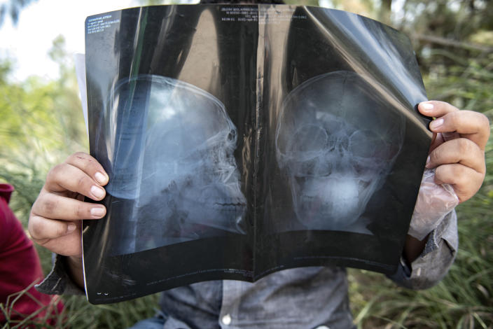 An illegal immigrant holds his X-ray while being detained south of McAllen, Texas. The man had suffered a head injury and came to the U.S. seeking treatment. (Photo: Sergio Flores for Yahoo News)