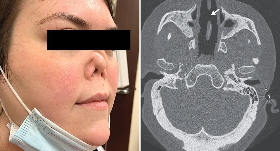 A CT scan shows a collapsed nasal cavity. Also pictured is a 34-year-old woman with a shrunken nose.