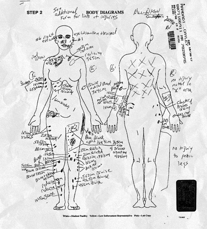 Three months after Cayley Mandadi's death, her autopsy report was released. It showed that Cayley died from blunt force face and head trauma, and labeled as a homicide. / Credit: Bexar County Court