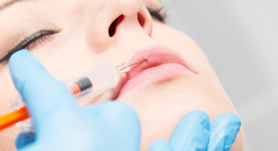 There is currently no minimum age limit for lip fillers in the UK [Photo: Getty]