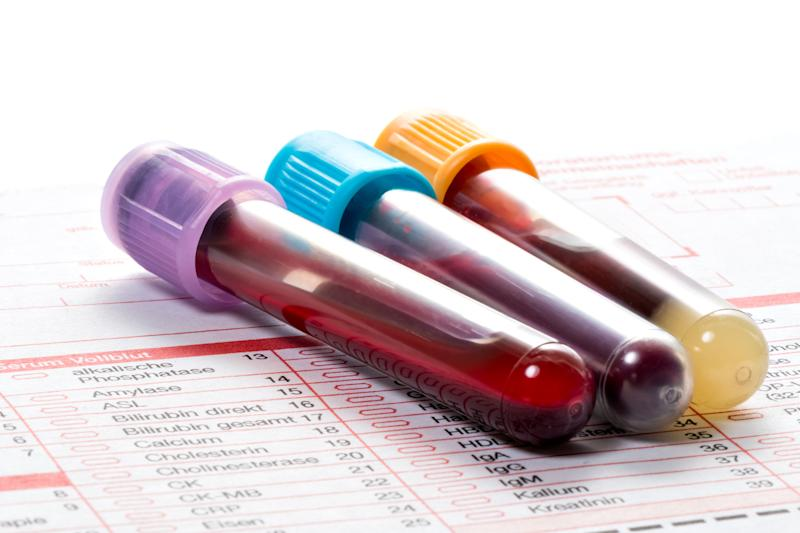 Three blood vials on a diagnostic testing form