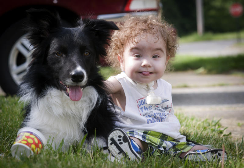 <p> Kaiba Gionfriddo plays with the family's dog, Bandit, outside his Youngstown, Ohio home Tuesday, May 21, 2013. Born with a birth defect that caused the boy to stop breathing every day, he can now breathe normally, with a first-of-a-kind biodegradable airway made by Michigan doctors using plastic particles and a 3-D laser printer. (AP Photo/Mark Stahl)