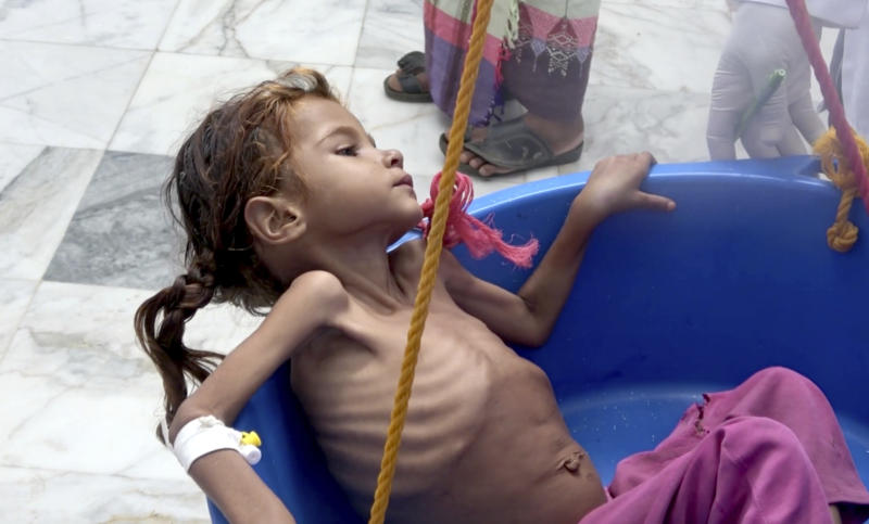 "FILE - In this Aug. 25, 2018 file image made from video, a severely malnourished seven-year-old Amal Hussein — whose name means ""hope"" in Arabic, is weighed at the Aslam Health Center in Hajjah, Yemen. On Sunday, Nov. 4, 2018, Geert Cappelaere called the situation a ""living hell"" for all Yemeni children, noting the death of Amal a child whose emaciated body gained attention on the front page of the New York Times last week. In a speech delivered in Amman Cappelaere said, ""There is not one Amal — there are many thousands of Amals."" (AP Photo/Hammadi Issa, File)"