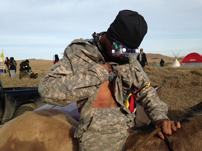 <p>A Dakota Access oil pipeline protester who identified himself only as Smokey shows where he was hit by a shotgun bean bag round fired by officers trying to force protesters from a camp on private land in the path of pipeline construction, on Thursday, Oct. 27, 2016 near Cannon Ball, N.D. (Photo: James MacPherson/AP) </p>