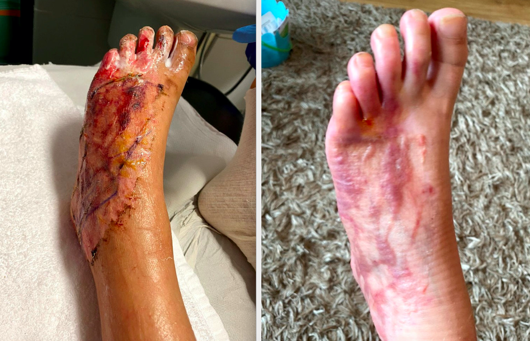 Will Tyler's suffered severe wounds on his foot. (SWNS)