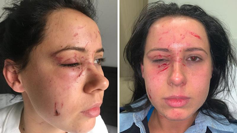 The man allegedly forced the female officer to the ground, scratched and bit her head, and pulled out hair, police said. Source: Police Association of NSW