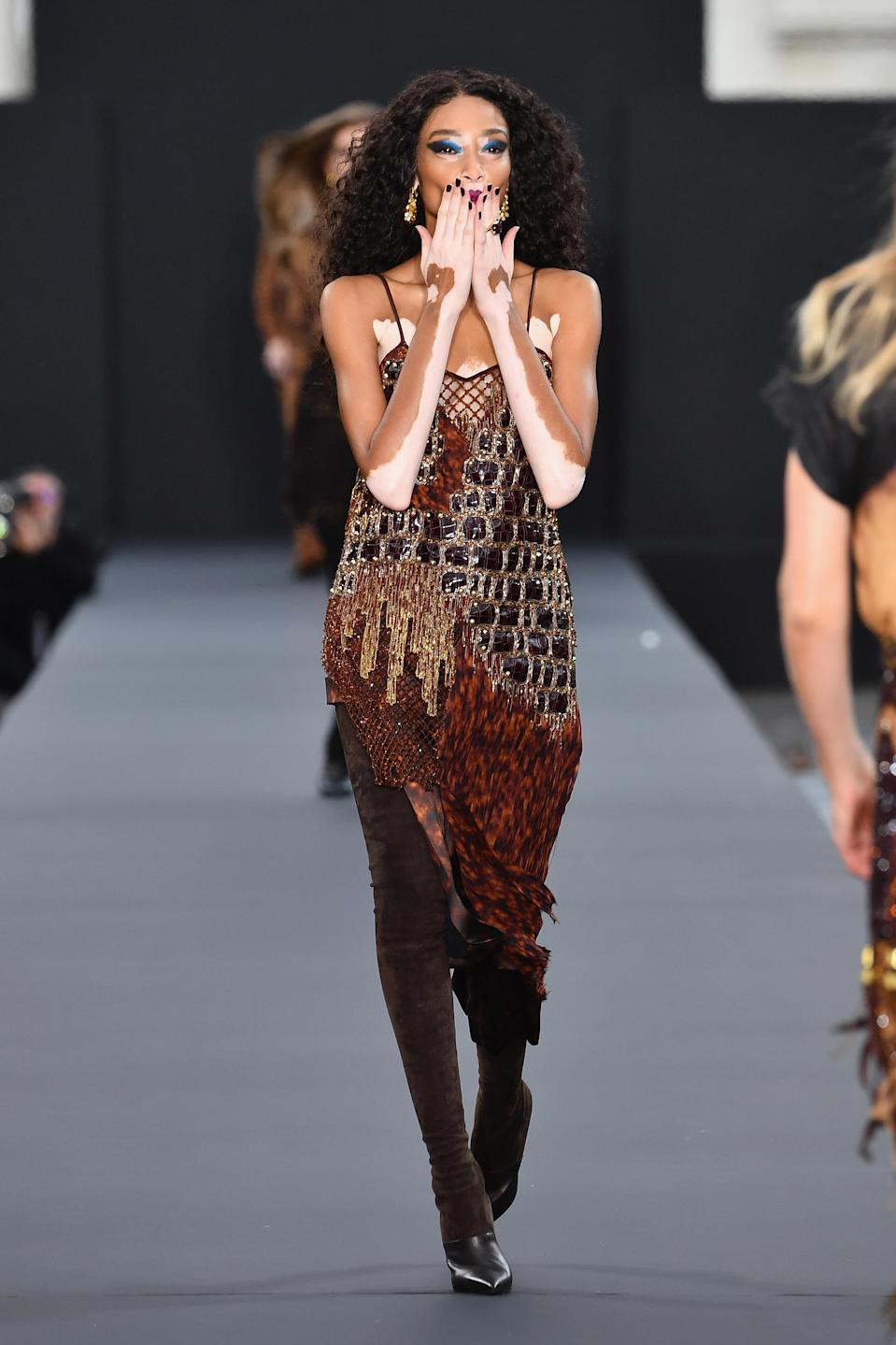 <p>L'Oreal proved its commitment to diversity by casting vitiligo model Winnie Harlow. <i>[Photo: Getty]</i> </p>