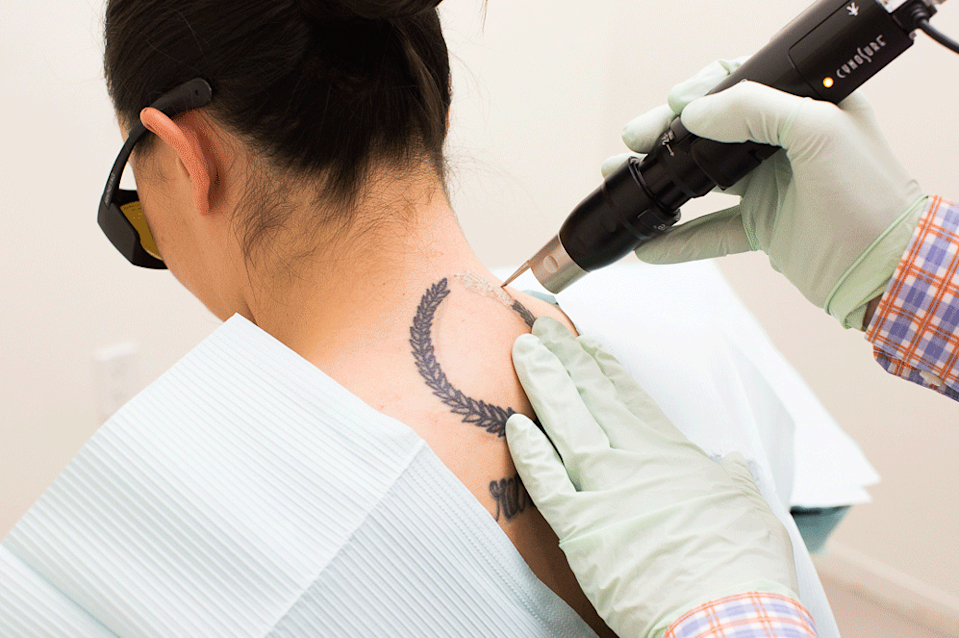 Hi, that's me getting my tattoo removed.