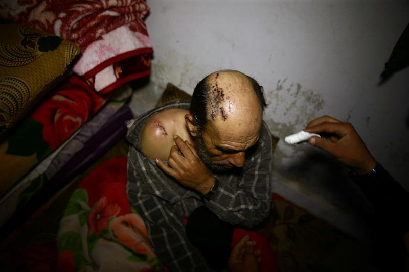 A wounded man in a shelter in Douma, Syria, on March 11, 2018. (Bassam Khabieh/Reuters)